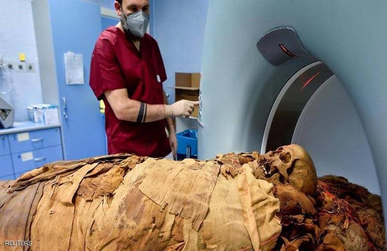 مومياء مصرية في مستشفى إيطالي