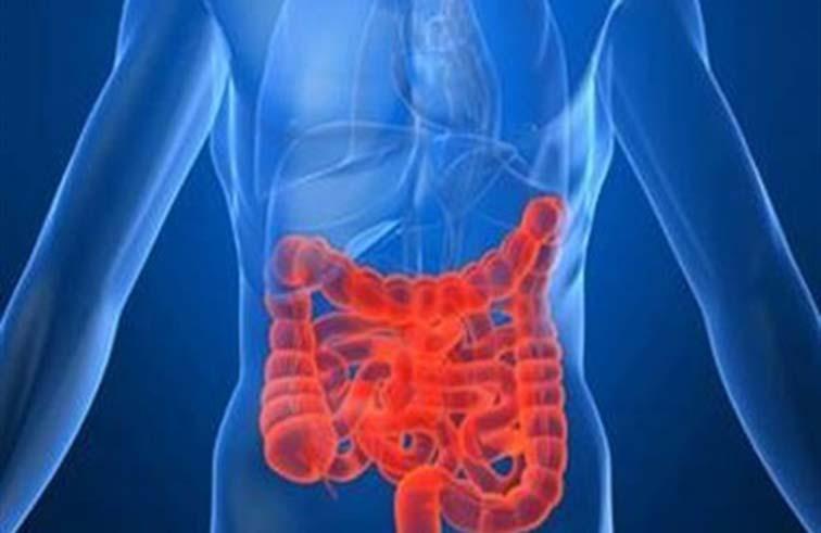دراسة تكشف علاجًا فعالًا لمرضى القولون التقرحي