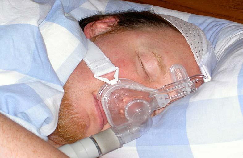 خيارات علاجية لانقطاع النفس الانسدادي اثناء النوم