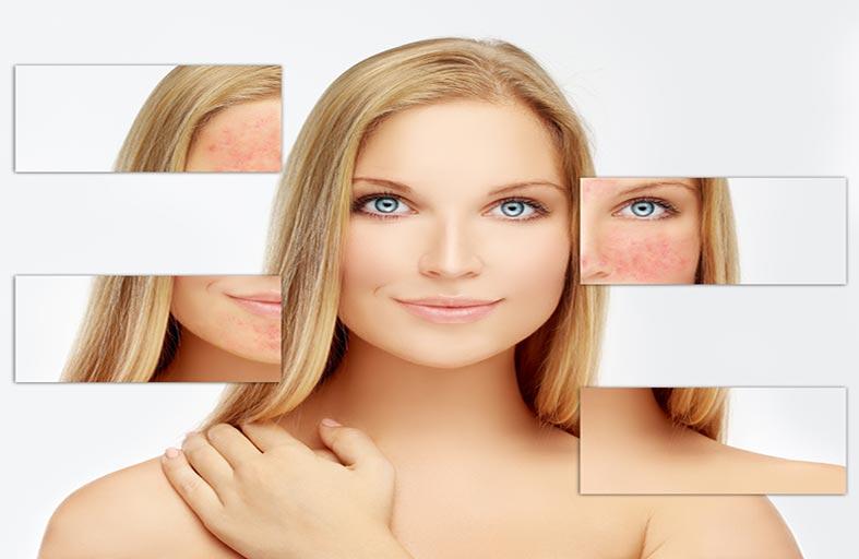 وصفات طبيعية لعلاج احمرار  الوجه بسهولة وسرعة تامة