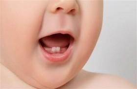 متى يكون ضعف الأسنان اللبنية خطراً؟