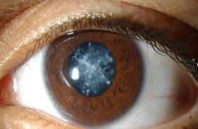اتساع بؤبؤ العين مقياس للتوتر
